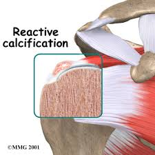 Anatomy Of Shoulder Muscles And Tendons Calcific Shoulder Tendonitis Houston Methodist