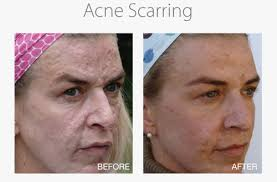 light therapy for acne scars medical needling scar reduction beauty grace