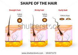 types of ingrown hair various types joint illustrated by joints stock vector 330572654