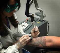 best tattoo removal celebrity laser spa shopping and services