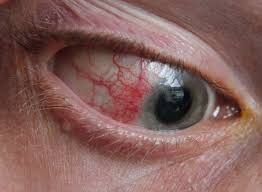 What Causes A Blind Spot In Your Eye Episcleritis Wikipedia