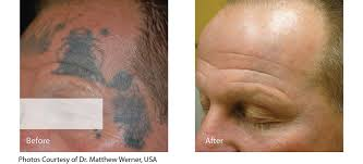 tattoo removal salem oregon neaman plastic surgery