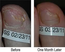 laser toenail fungus treatment removal new jersey nj toenail