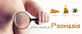 Home Remedies For Small Burns - 25 natural home remedies for psoriasis on hands feet u0026 others