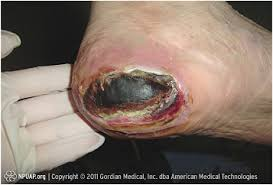 What Is Dead Tissue Called What Is The Appropriate Treatment Of Black Heels