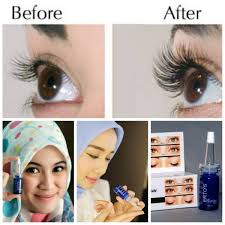 Serum Pemanjang Bulu Mata 22 keunggulan top eyelash serum ertos yang banyak dipakai artis