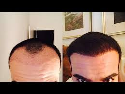 hair transplant month by month pictures hair transplant 5 month before and after review youtube