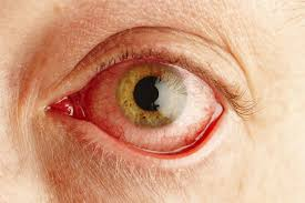 Map Dot Dystrophy Pseudomembrane Definition Eye Anatomy