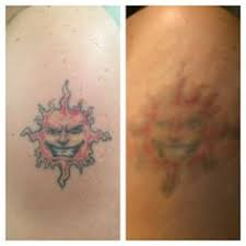 tattoo removal london simple tattoos removal tattoos removal tattoo is an art that is