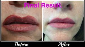 Lip Tattoos On - lip correction removal