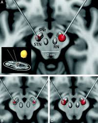 explaining clinical effects of deep brain stimulation through