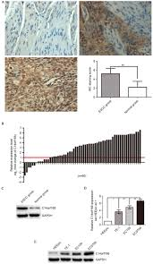 expression and clinical significance of c14orf166 in esophageal