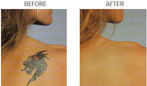 tattoo camo before and after cosplaysupplies com tutorials dermacolor camouflage makeup