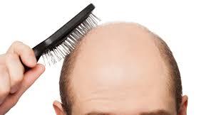 Does Diabetes Cause Hair Loss Alopecia Canadian Dermatology Association