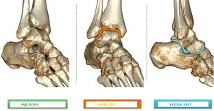 Subtalar Joint Fracture Osteopathy Singapore U2013 Page 2 U2013 Your Everyday Health Questions