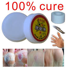 How To Remove Planters Warts by Aliexpress Com Buy Chinese Natural Treatment Bump On The Finger