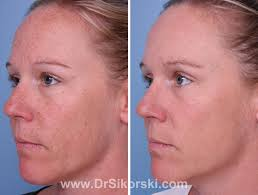 intense pulsed light review intense pulsed light orange county patient 1 natural image oc