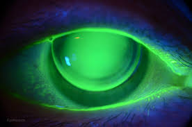 blue light filter contact lenses typical corneal rigid gas permeable rgp contact lens