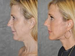 hairstyles that cover face lift scars beverly hills natural mini facelift auralyft neck lift lipo no