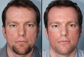 light therapy for acne scars supplements for acne treatment acne scar treatment before and after