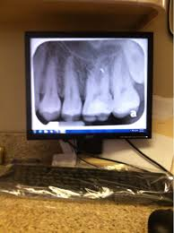Does Laser Teeth Whitening Work Teeth Whitening