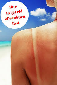 How To Get Rid Of Bed Sores How To Get Rid Of Sunburn Fast If You U0027ve Overdone It In The