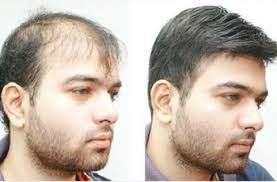 hair bonding hair restoration in hyderabad hair bonding hair weaving