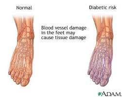 Foot Vascular Anatomy How To Get Better Circulation In The Hands U0026 Feet Healthy Living