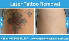 tattoo removal in mumbai laser tattoo removal dermatologist mumbai