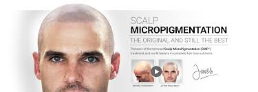 pics of scalp micropigmentation on people with long hair scalp micropigmentation for baldness thinning hair alopecia