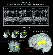 magnetoencephalographic patterns of epileptiform activity in