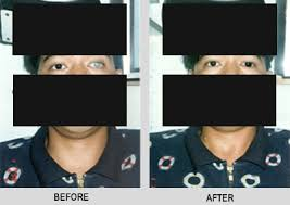 Contacts For Color Blindness Correction Optical Philippines Optical Clinic In The Philippines Eyeglasses