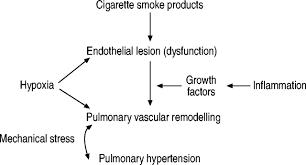 pulmonary hypertension in chronic obstructive pulmonary disease