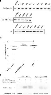 deglycosylation of myeloperoxidase uncovers its novel antigenicity