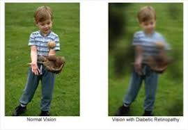 Diabetic Blindness Diabetic Retinopathy Common Causes U0026 Treatment Pharmeasy Blog