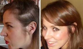 womans hair thinning on sides i learned the bald truth about my hair loss from unflattering