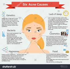 Face Acne Map Stress Pimples Tommycat Info