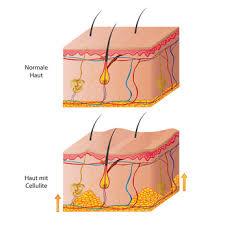 bindegewebsschwäche medikamente bindegewebsschwäche anzeichen symptome ursachen behandlung