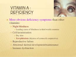 Night Blindness Deficiency Fat Soluble Vitamins