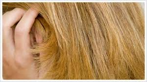 hair style for trichotillomania trichotillomania archives hair loss products solutions and
