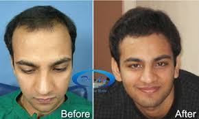 best hairtransplant in the world dr a s clinic world s 1 ranked hair transplant centre