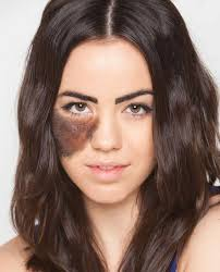 commercial actress with mole on face celebrities embracing their birthmarks instyle com