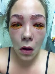 tylah durie 16 almost blinded after reaction to eyebrow tint
