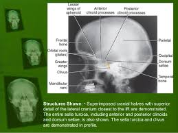 Radiology Anatomy Positioning And Radiographic Anatomy Of The Skull