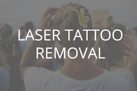 oregon aesthetics u0026 laser tattoo removal