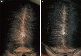womans hair thinning on sides finasteride treatment of female pattern hair loss jama