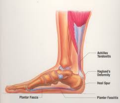 Foot Vascular Anatomy When To See The Podiatrist Dr Kevin S Gavin Foot And Ankle