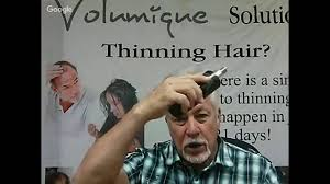 Best Product Hair Loss Best Hair Loss Products Hair Loss Thinning Hair Hair Loss
