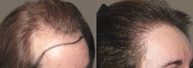 hair style wo comen receding ziering medical 2925 strip female hair loss with receding