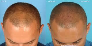 fue haircuts dr alan bauman review plastic surgeon doctor florida directory
